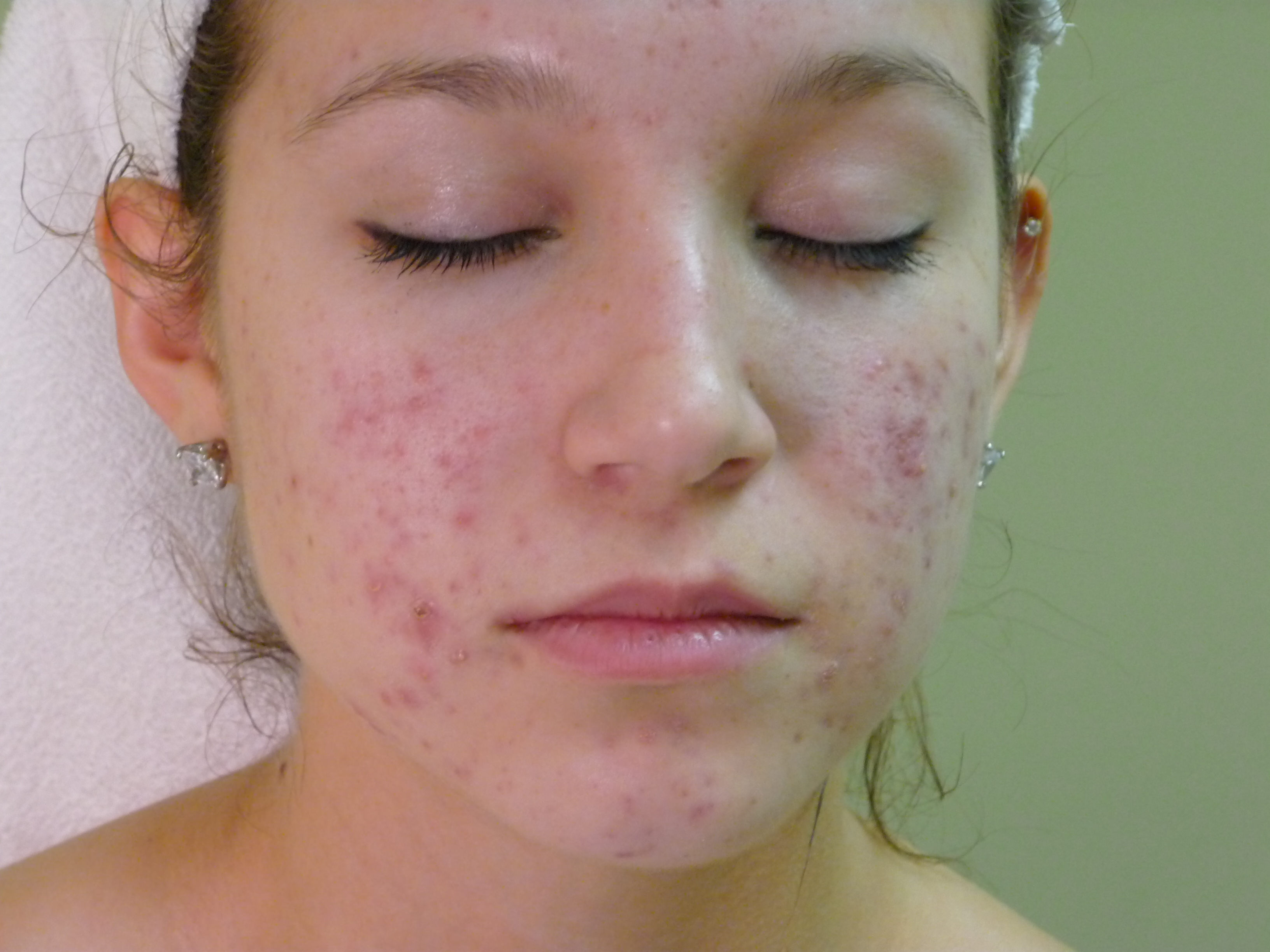 Dealing With Acne Scars