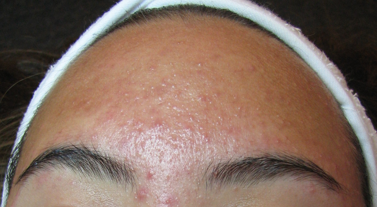 Forehead Acne Its Causes And Remedies